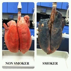 Come ripulire i nostri polmoni dal catrame e dai danni del fumo?? Ecco come fare!