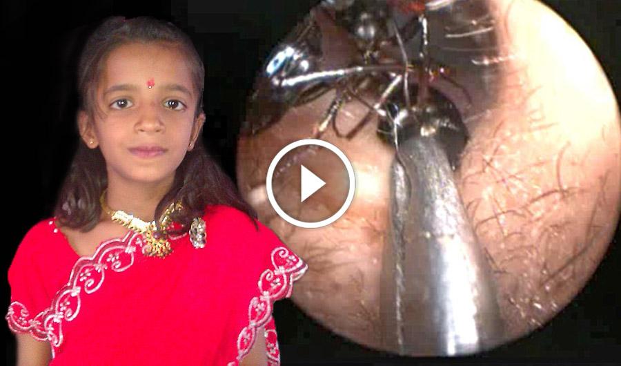 La scioccante storia della bambina di 12 anni con migliaia di formiche nell'orecchio... PAZZESCO!!