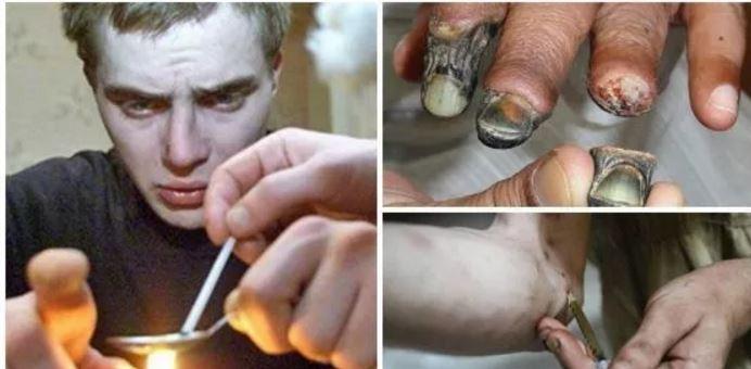 Ecco cosa succede al tuo corpo se assumi Krokodil, la droga degli zombie. Ecco i suoi effetti devastanti!!