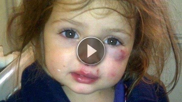 Orrore alla scuola materna: schiaffi e pugni della maestra – VIDEO