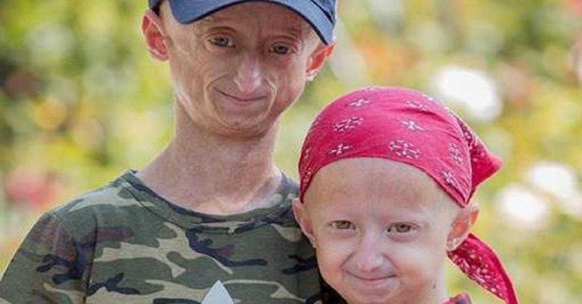 I fratelli che invecchiano precocemente a causa della progeria, e lottano ogni giorno contro i bulli
