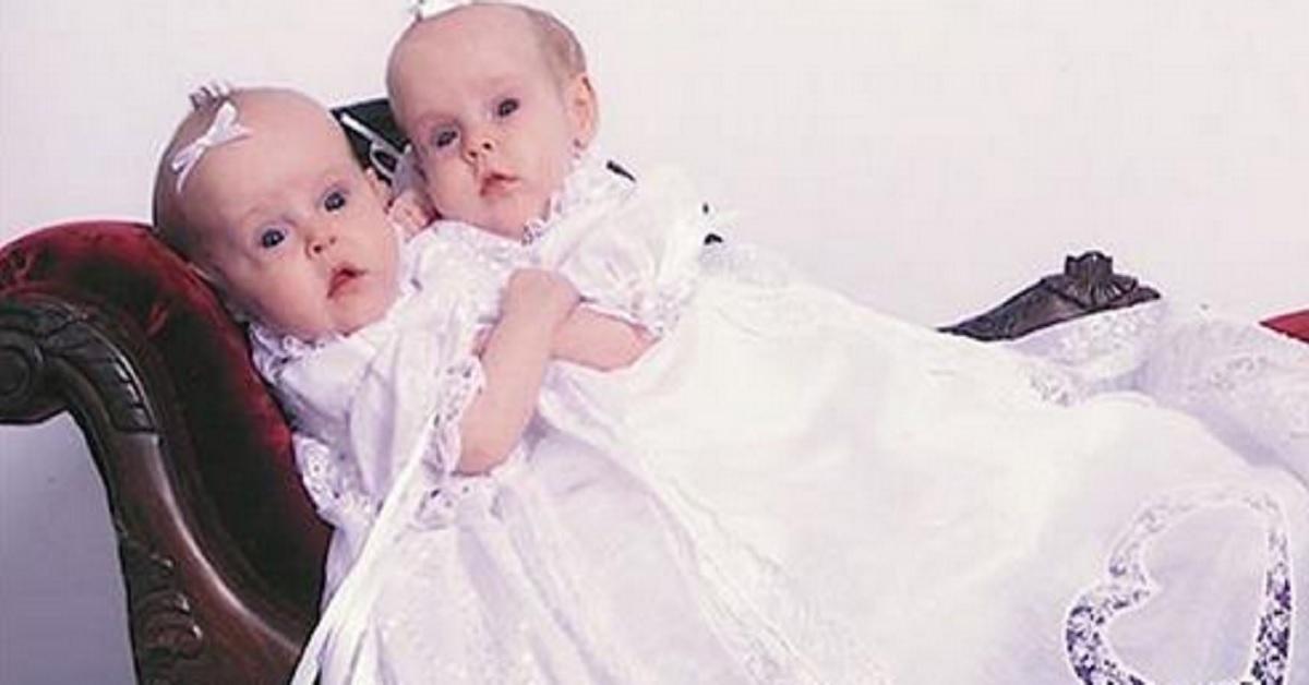 Le gemelle siamesi nate nel 2002 e separate nel 2006. Oggi hanno 17 anni e mostrano la loro vita sui social network